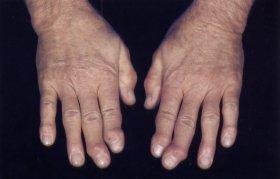 Reumatoloog Reychler Over Artrose Of Osteoartritis